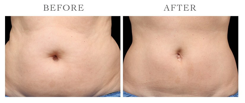 Revive-CoolSculpting-ba