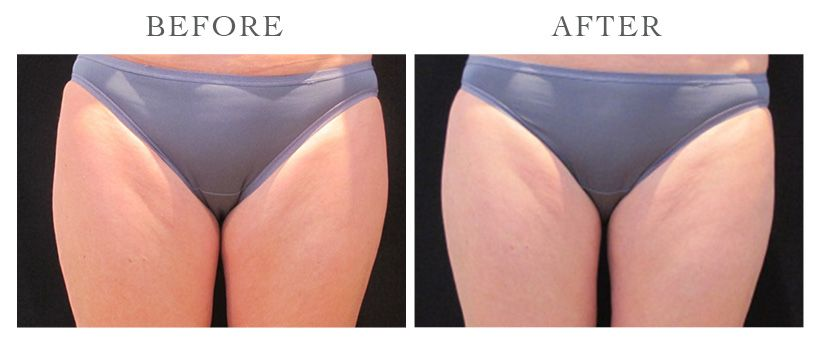 Revive-CoolSculpting-ba11