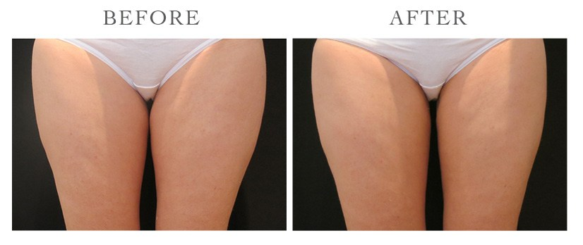 Revive-CoolSculpting-ba12