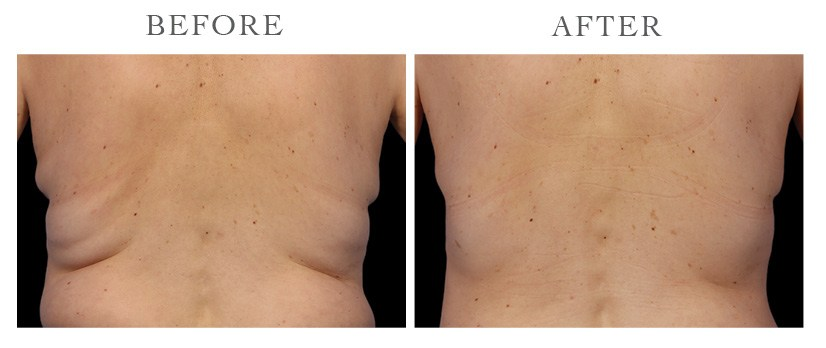 Revive-CoolSculpting-ba13