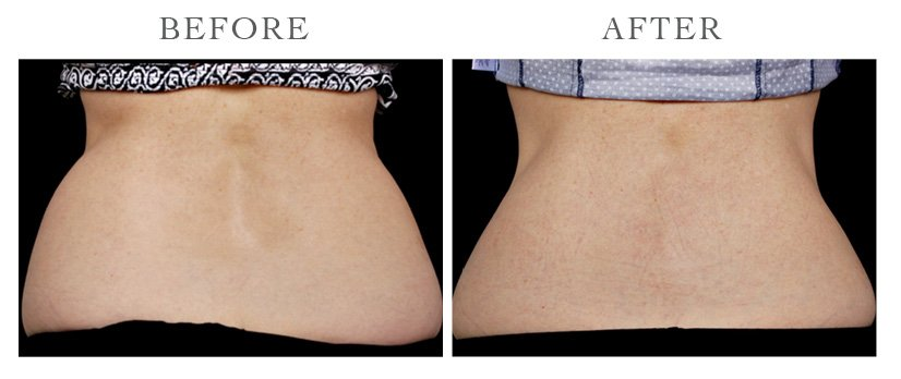 Revive-CoolSculpting-ba14