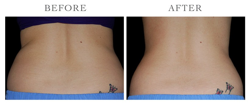 Revive-CoolSculpting-ba15