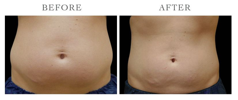 Revive-CoolSculpting-ba2