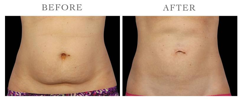 Revive-CoolSculpting-ba3