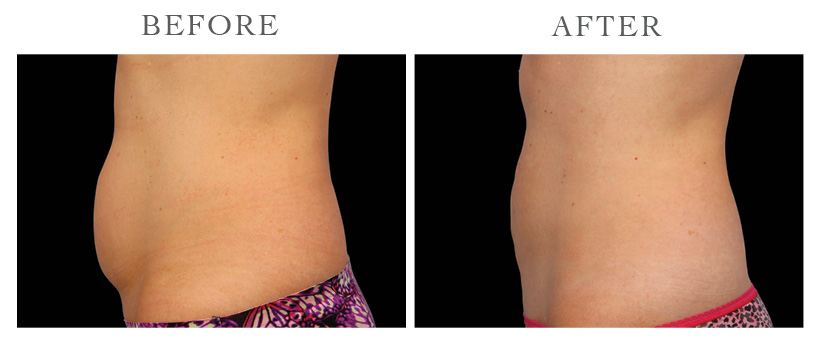 Revive-CoolSculpting-ba4