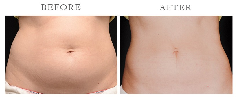 Revive-CoolSculpting-ba5
