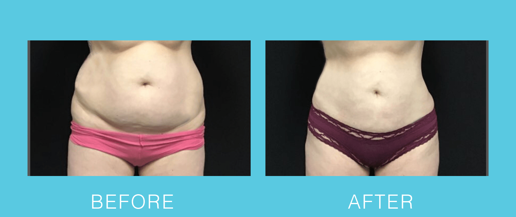 Abdominal and Hips Liposuction