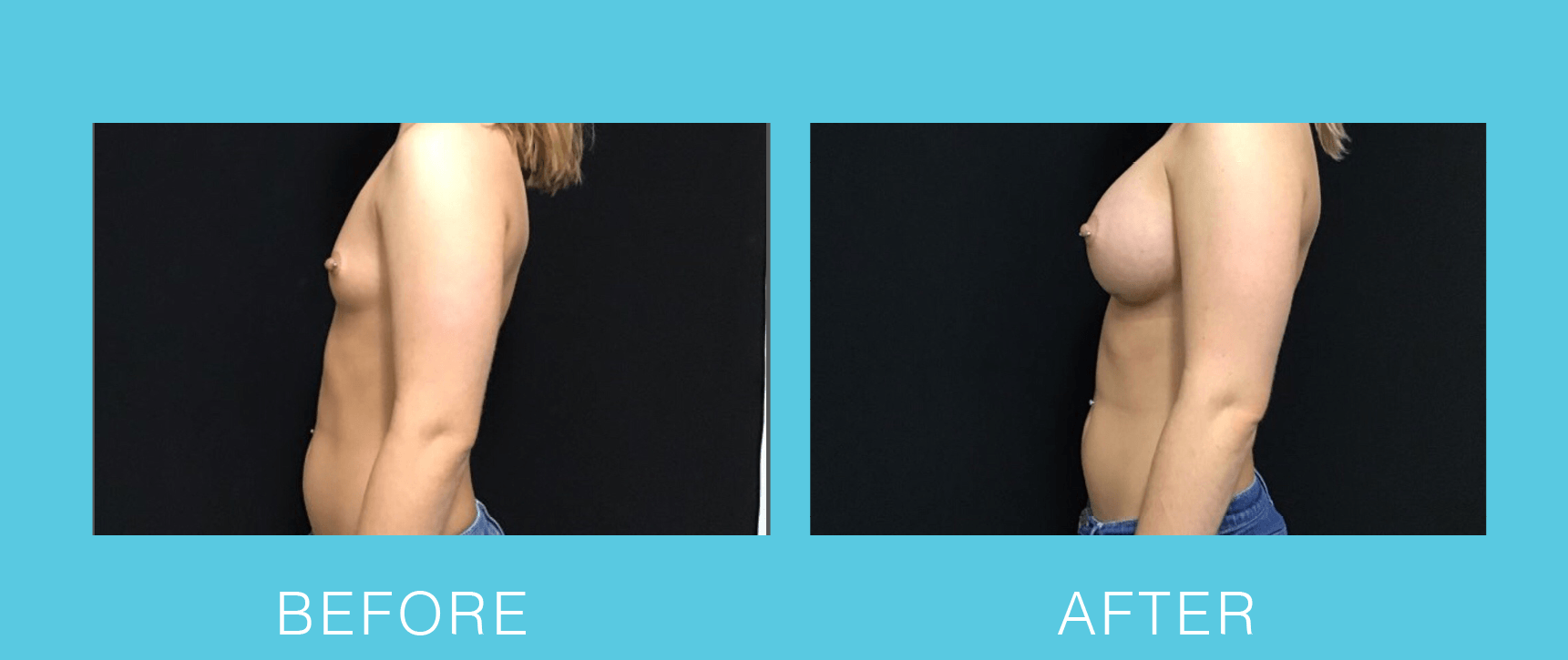 Breast Aug Before & After