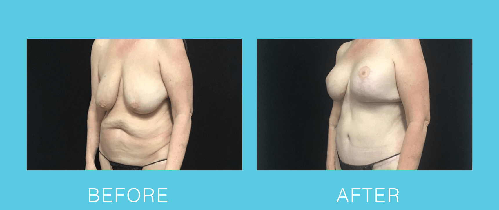 Breast Aug and Lift with Abdominoplasty