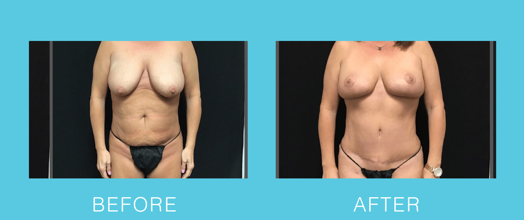 Breast Reduction and Lift with Abdominoplasty