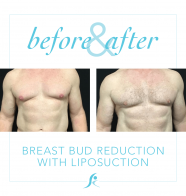 Male Breast Reduction.. Who Is A Candidate?