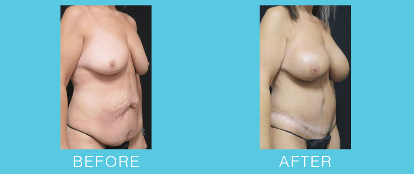 Breast Aug. Before & After