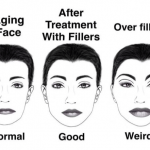 fillers graphic