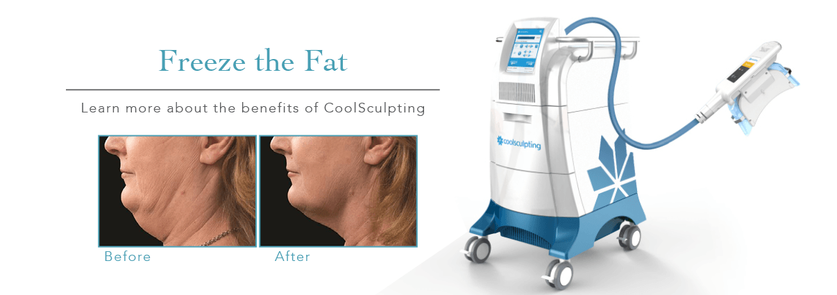 Freeze fat with CoolSculpting
