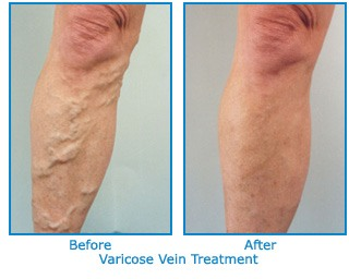 before_after_varicose_vein