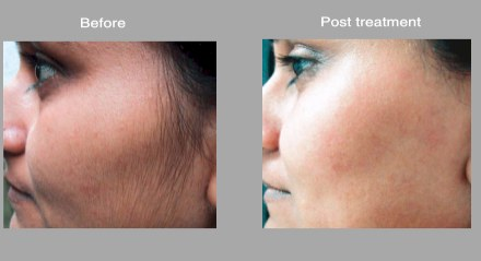 Blog Considering Laser Hair Removal Swetnam Cosmetic Surgery