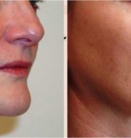 Why would you want to use Platelet Rich Plasma for facial rejuvenation?